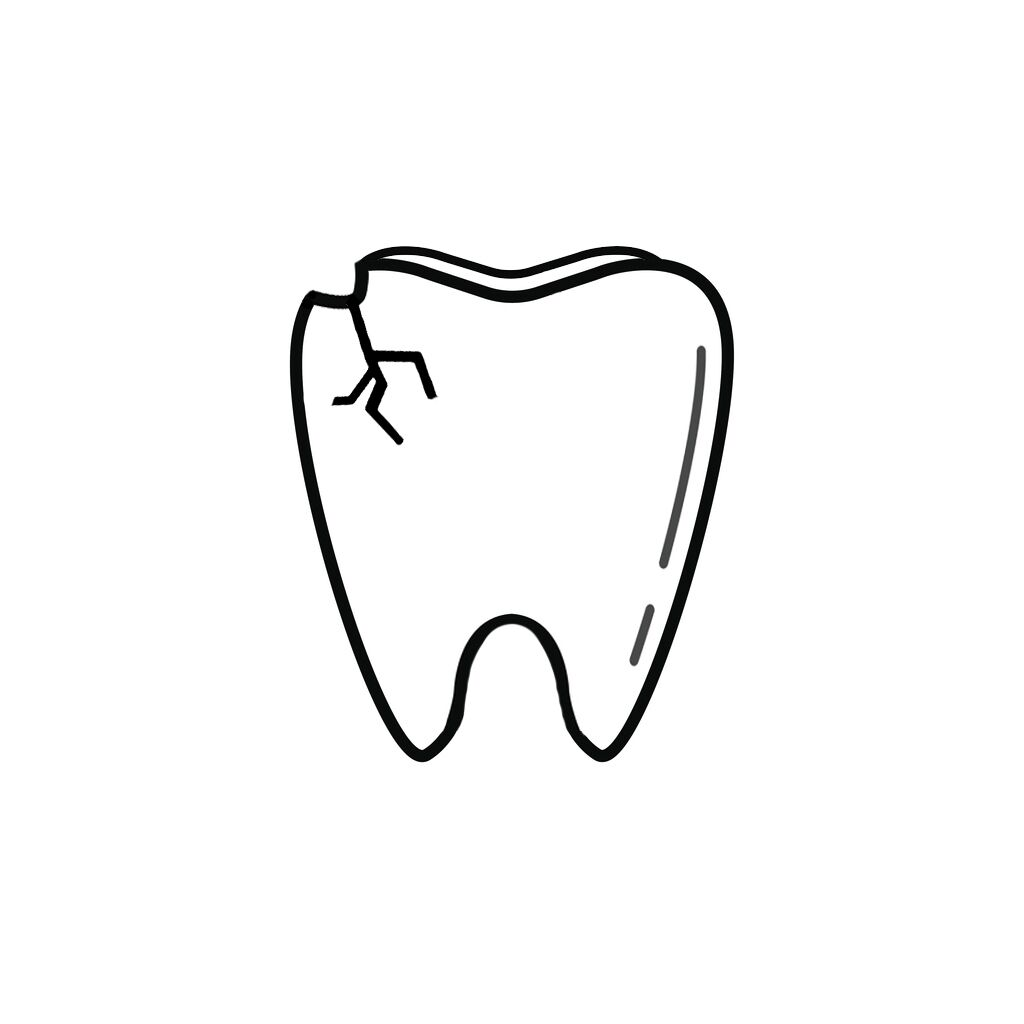 South Sioux City NE Dentist | I Chipped a Tooth! What Can I Do?